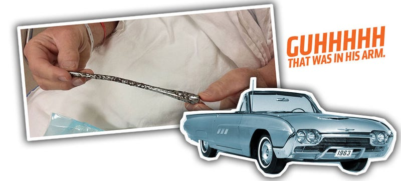 Illustration for article titled This Guy Had A T-Bird Indicator Stalk In His Arm For 51 Years