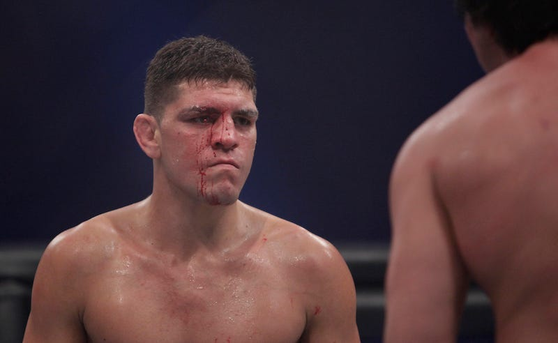 Illustration for article titled Nick Diaz Doesn't Pay His Taxes, Is A Crazy Person