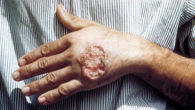 Image: CDC/ Dr. D.S. Martin