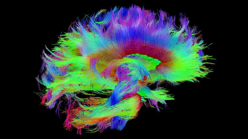 The brains of blind people really are wired to enhance other senses wiring diagram of the human brain also known as the connectome image nihlaboratory of neuro imaging and martinos center for biomedical imaging ccuart Gallery