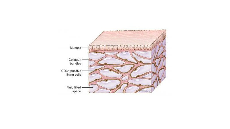 Scientists say they've discovered a network of fluid-filled tissue that lines the body, calling it the interstitium. Above, a representation of how it looks.
