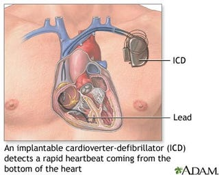 Illustration for article titled Implantable Heart Defibrillators Have Been Causing Brain Damage