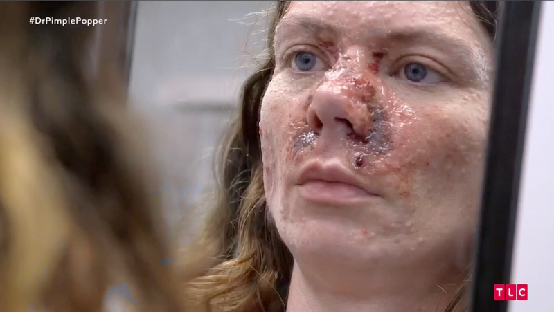 Dr Pimple Popper Season 2 Episode 4 Recap
