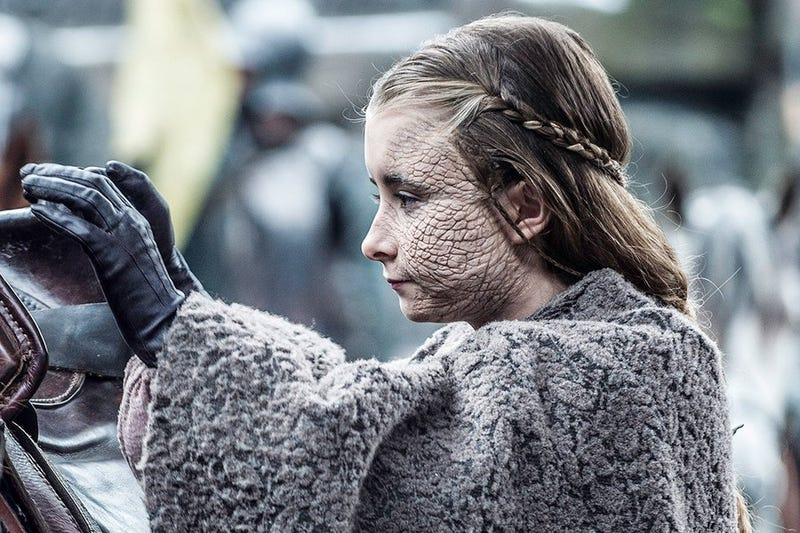 How Greyscale In Game Of Thrones Compares To The Real Story Of Leprosy