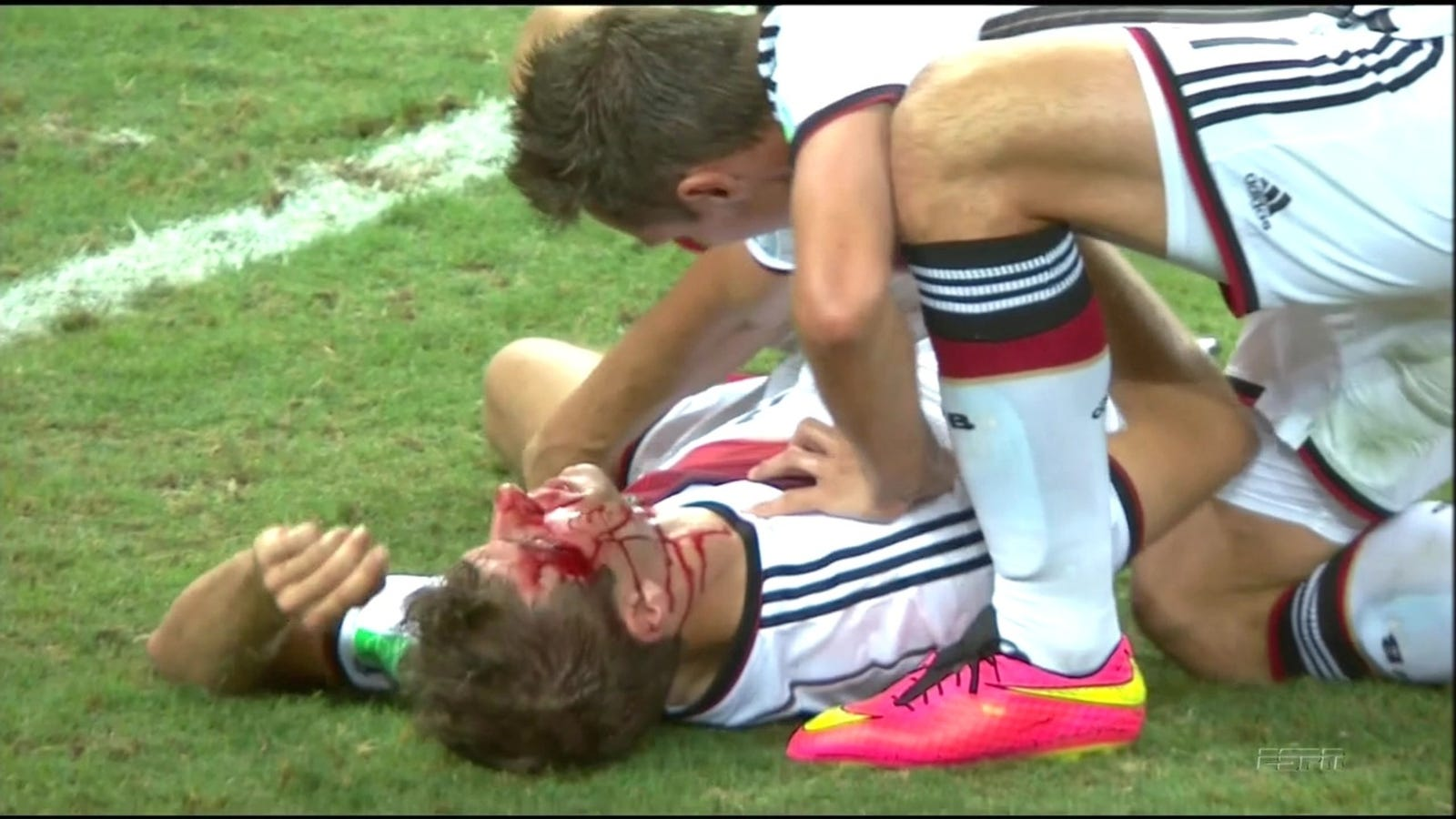 Thomas Müller's Face Is A Bloody Mess