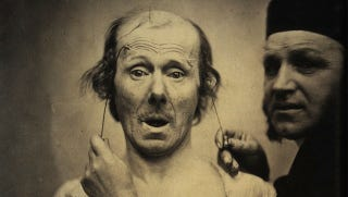 Illustration for article titled Terrifying, Century-Old Photographs from Neuroscience Experiments