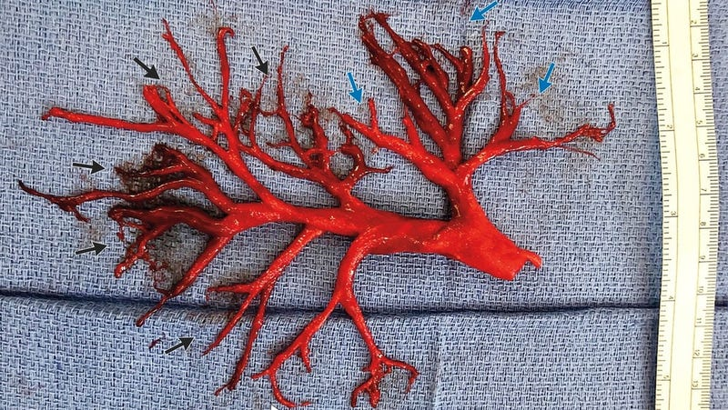 A near-perfect cast of a right bronchial tree coughed up by a patient experiencing internal bleeding related to anticoagulants administered during treatment of heart failure.
