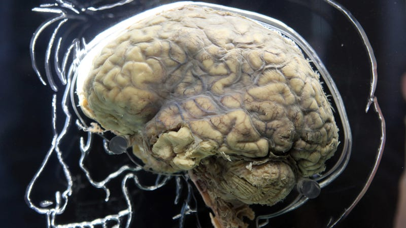 A real human brain, seen above, on display during an 2011 exhibit held at the At-Bristol Science Center in the UK. Photo: Getty
