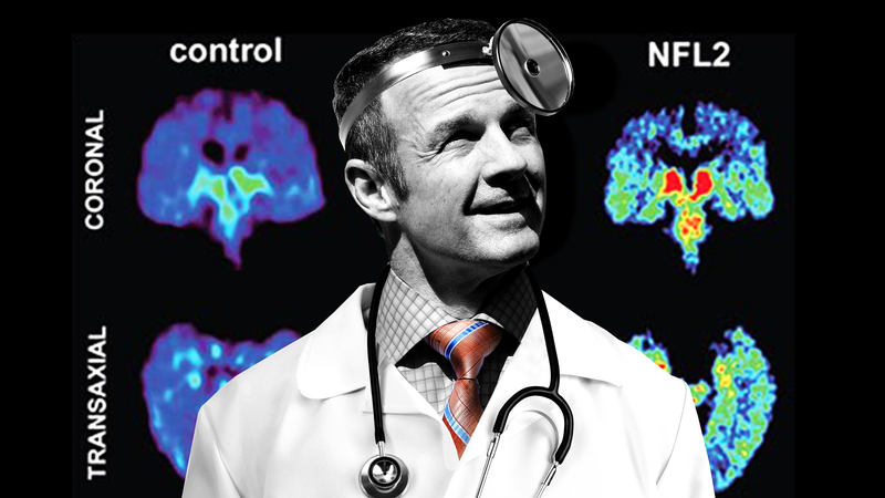 Illustration for article titled Merril Hoge Doesn't Want You To Use Your Brain