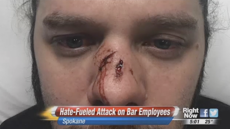 Washington State Bar Manager Brutally Attacked While Defending Black Bartender from Racist Customers