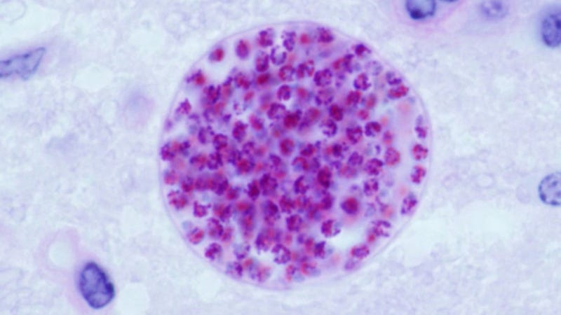 photo image Scientists Link 'Cat' Parasite to Common Neurological Disorders