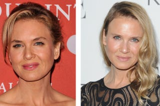 Illustration for article titled The Science Behind Renee Zellweger's New Face