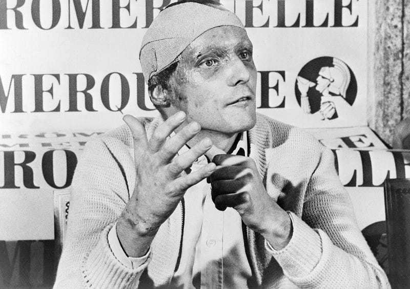 Lauda, following his near fatal crash at the West German Grand Prix six weeks ago, announced he would start at the Italian Grand Prix at Monza, Sept. 12, 1976. AP Photo