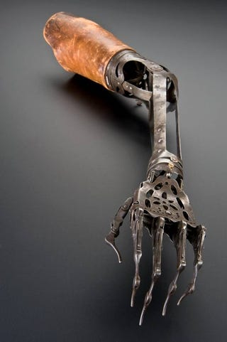 Illustration for article titled Victorian Prosthetic Arm—No, No, No, No, No