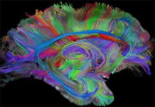 Illustration for article titled Amazing DSI Brain Scanning Visualizes Your Mind's Inner Workings In 3D