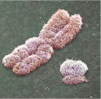 Illustration for article titled Is The Y Chromosome Dying Out?