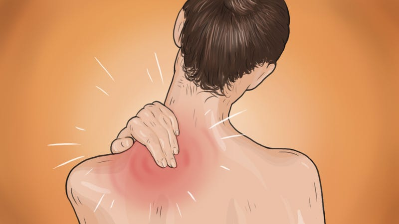Illustration for article titled What to Do When You Pull a Muscle From Working Out