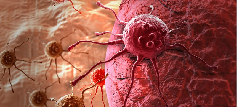 Illustration for article titled Finding, Treating, and Beating the Most Survivable Forms of Cancer