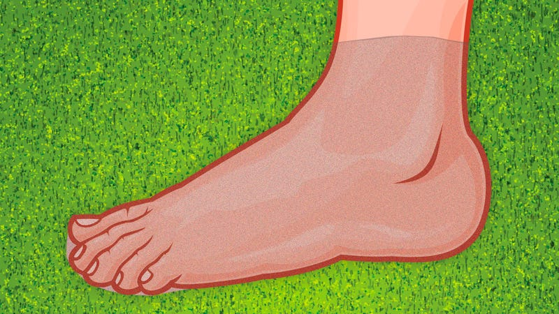 Illustration for article titled Prevent Blisters When Running or Hiking with Pantyhose Bottoms