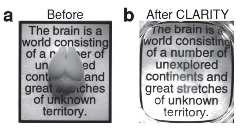 Illustration for article titled Scientists can now turn brains invisible