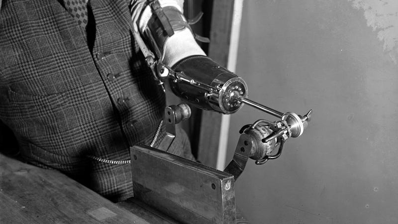 a history on prosthetics past and A glimpse of prosthetics through the ages  artificial limbs have gone through an  in the past, prosthetics looked very much like what they were replacing.