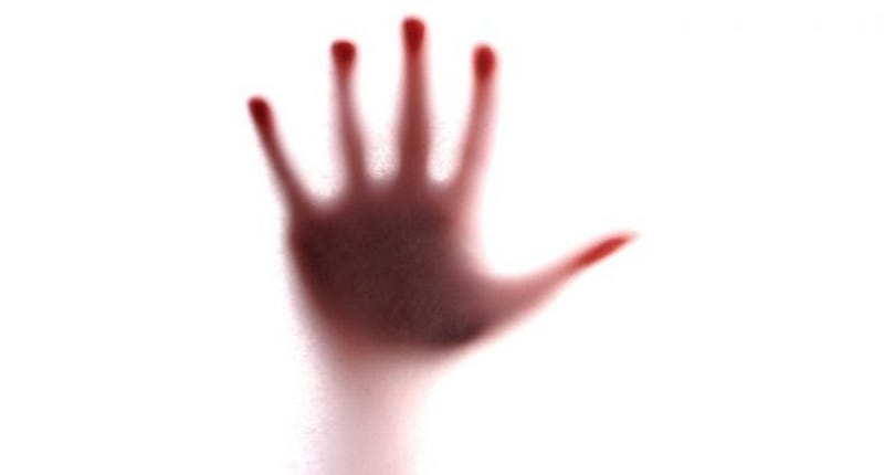 Illustration for article titled Esta mujer nació con solo tres dedos, pero su cerebro se inventó los otros dos