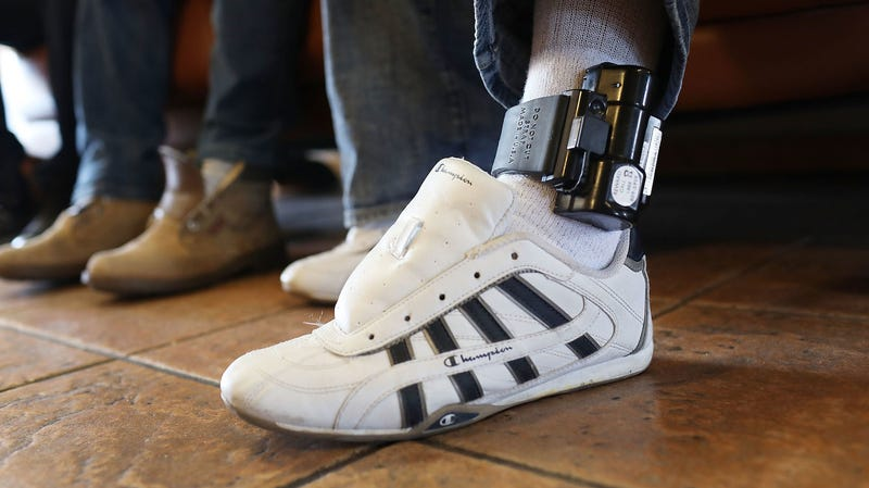 A father wears an ankle bracelet as he is cared for in an Annunciation House facility after being reunited with his son on July 25, 2018 in El Paso, Texas. He was reunited with his son at an I.C.E processing center after being separated when they tried to cross into the United States