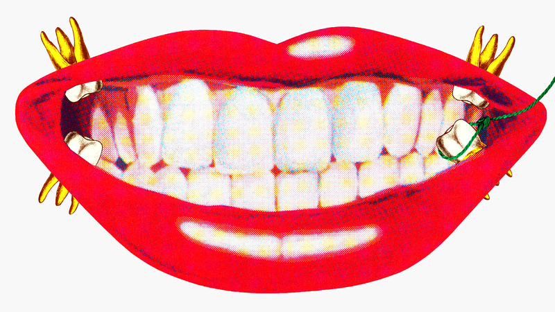 Illustration for article titled Should You Get Your Wisdom Teeth Taken Out?