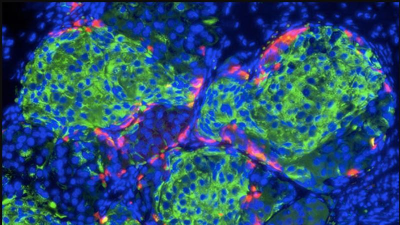 Insulin-producing pancreatic beta cells. Image: NIH