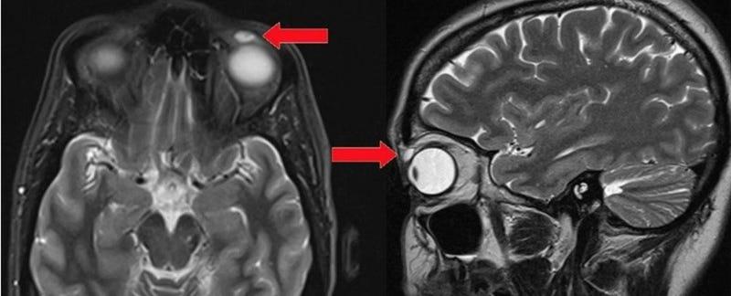 Illustration for article titled Sí, puede ocurrir: esta mujer pasó 28 años con una lente de contacto incrustada en su párpado