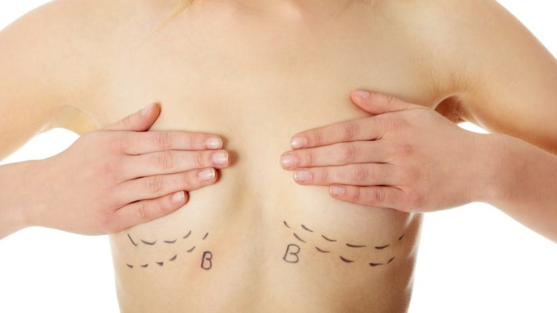 Illustration for article titled Breast Implants May Improve Women's Sex Lives, Says Very Dubious Study