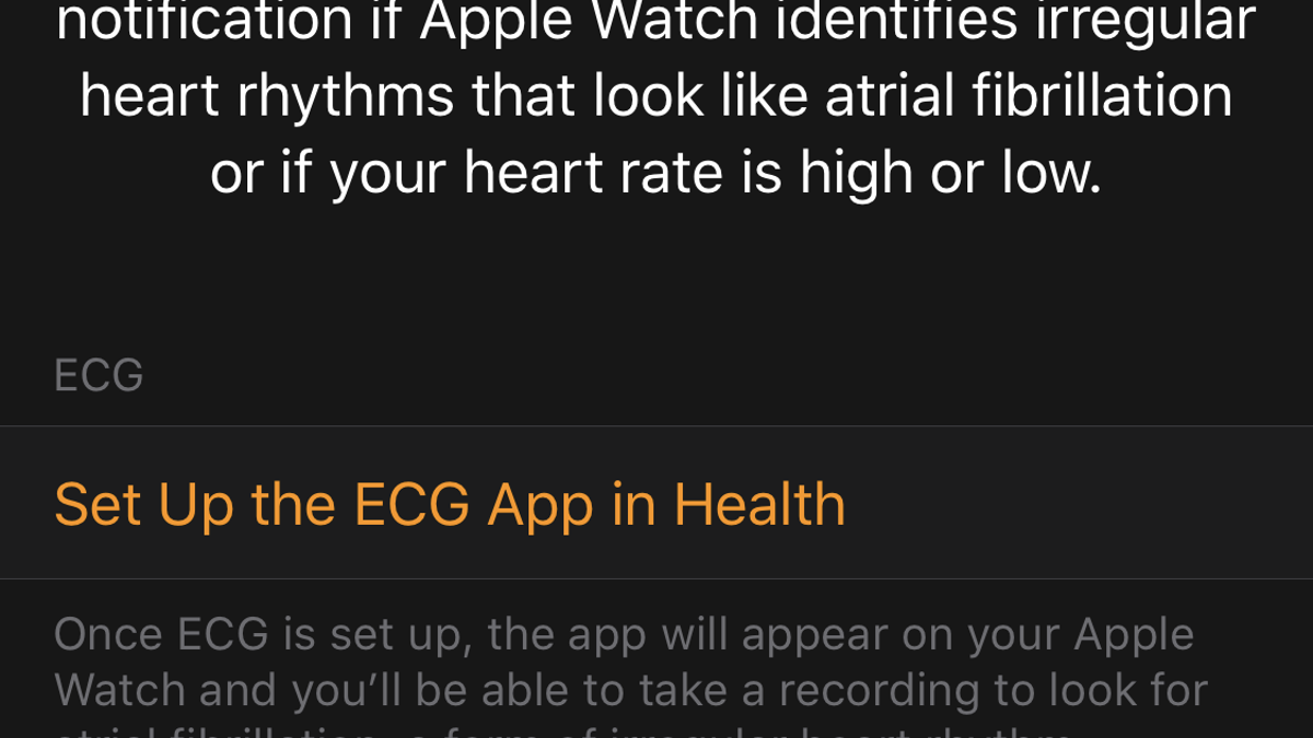 How to Set Up Your Apple Watch's New ECG App