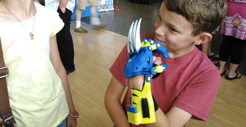 Illustration for article titled 3D-Printed Wolverine Claws Turn Kids With Prosthetics Into Superheroes