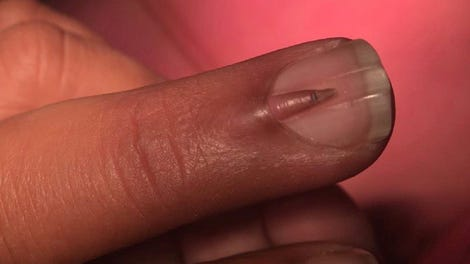 Here Is A Y Nail Growing On Top Of Another Someone S Middle Finger