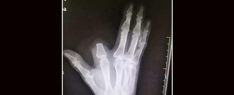 Illustration for article titled Se corta el dedo tras la mordedura de una serpiente. Los médicos le explican que no era necesario