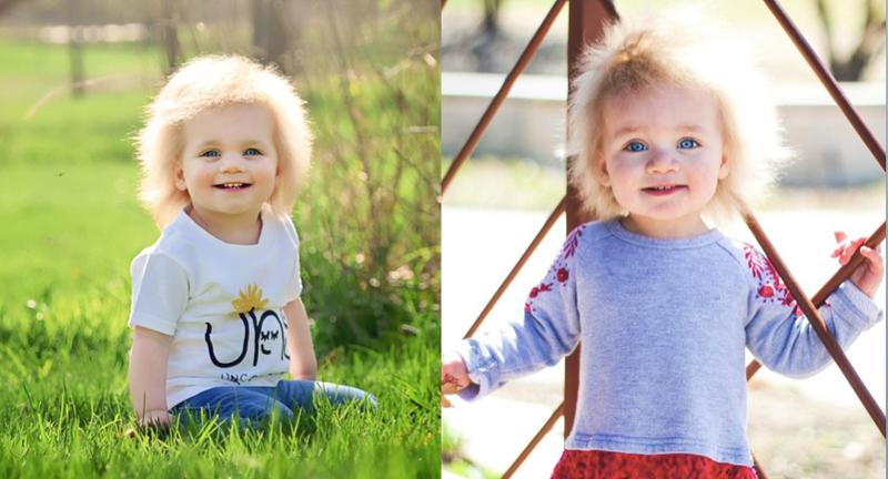 La pequeña Taylor McGowan padece del síndrome de cabello impeinable.
