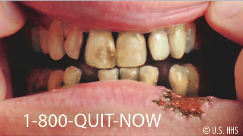 In a recent study, teenagers exposed to this poster may or may not have been tempted to buy cigarettes. Image: US HHS