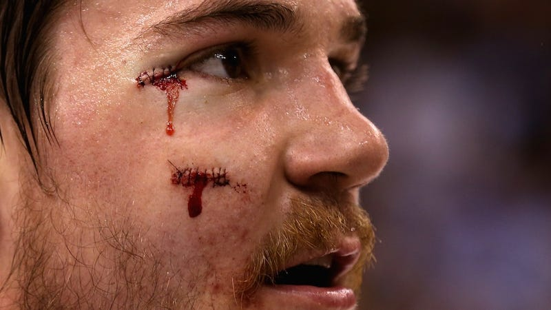 Illustration for article titled Andrew Shaw To Auction Off The Stitches From His Glorious Hockey Face