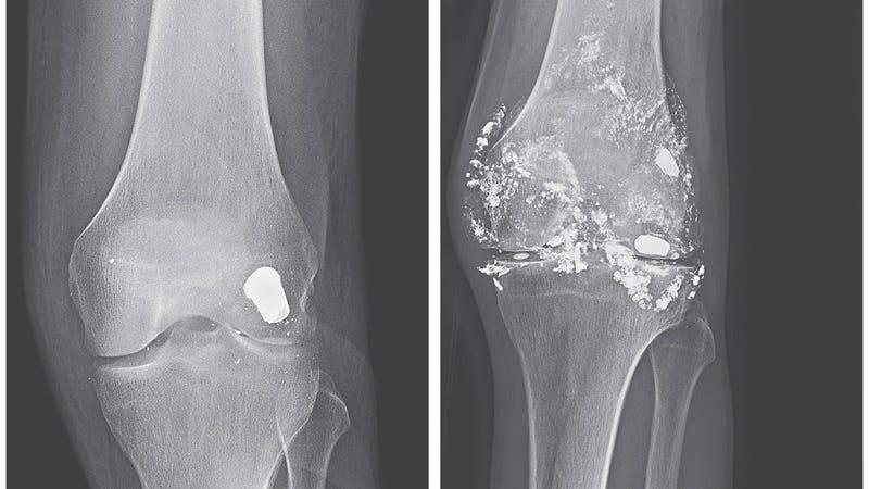 Dos radiografías de la misma rodilla con 14 años de diferencia