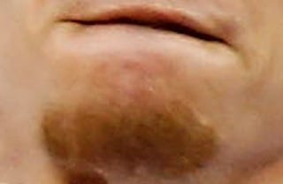 Illustration for article titled Whose Disgusting Baseball Chin Is This?