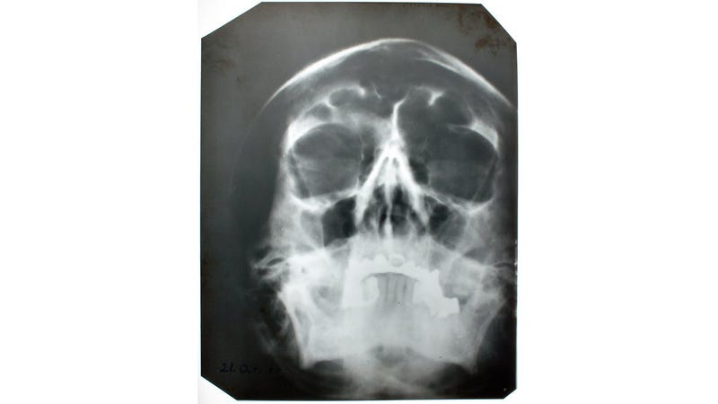 Illustration for article titled This is Hitler's skull