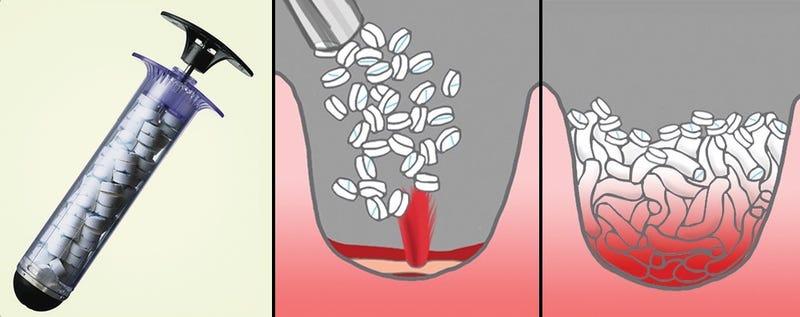 La jeringuilla que tapona heridas de bala en 15 segundos, aprobada para uso médico