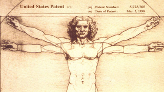 Illustration for article titled US Supreme Court Says Your Genes Can't Be Patented By Corporations