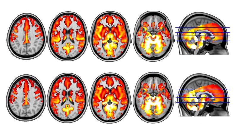 descubren-que-las-setas-alucinógenas-son-capaces-de-reiniciar-el-cerebro-de-personas-con-depresión-severa