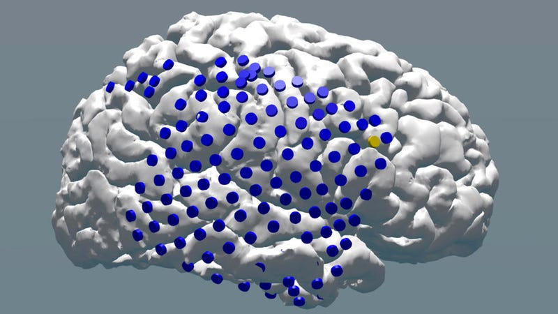photo image New Research Shows Electric Brain Stimulation Can Help Memory