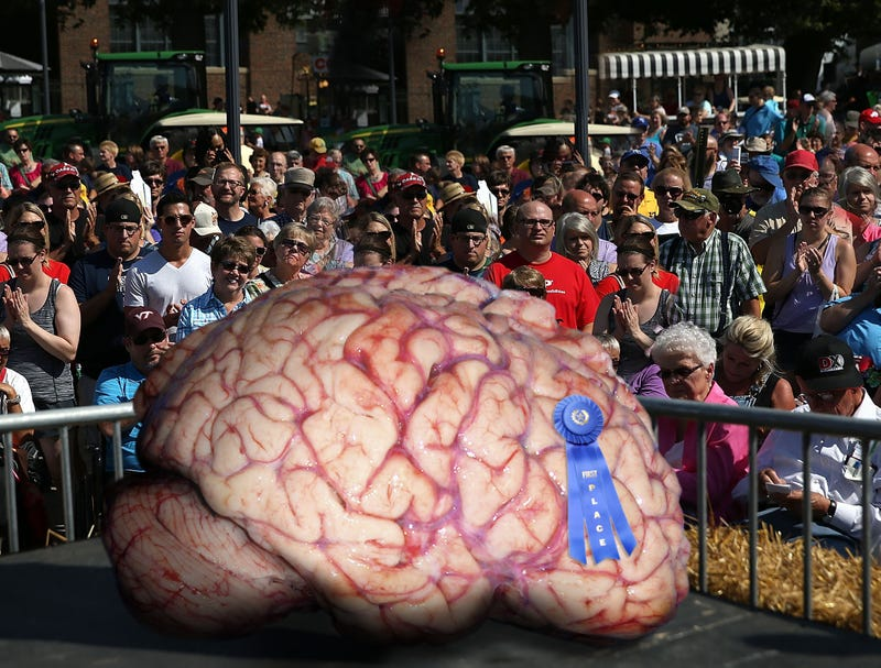 Illustration for article titled Ben Carson Wows Iowa State Fair Attendees With Massive 300-Pound Brain