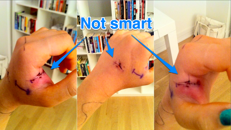 Illustration for article titled Smart Sutures Use Ultra-Thin Technology to Detect Infection