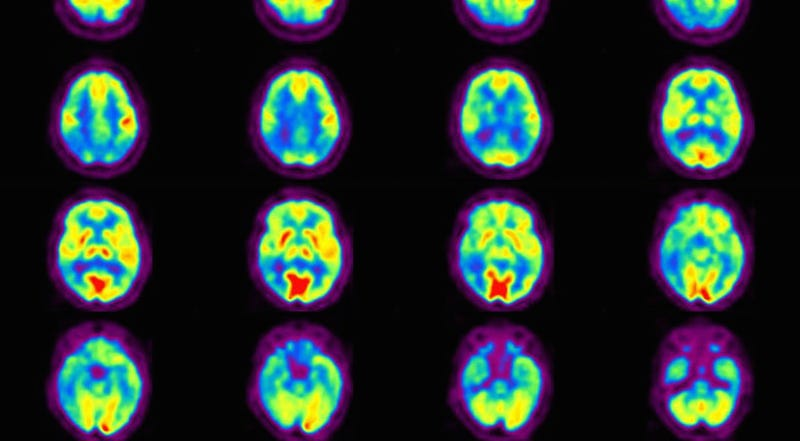 The brain with Alzheimer's. Image: Université d'Angers