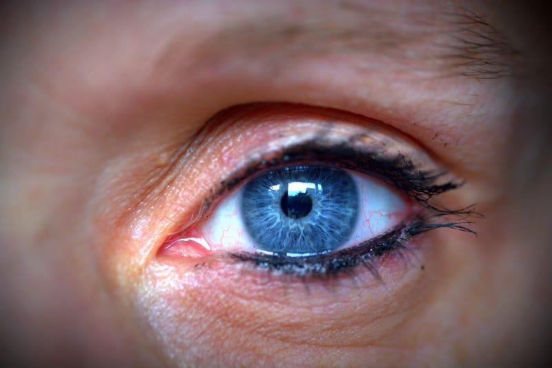 Illustration for article titled Esta mujer tenía cuatro abejas atrapadas dentro de su ojo (alimentándose de sus lágrimas)