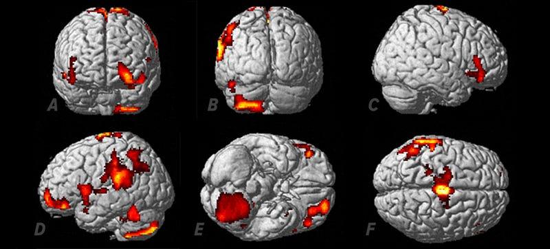 Illustration for article titled Captan por 1ª vez la reacción cerebral a una experiencia extracorporal